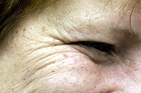 With botox decrease or erase wrinkles around the eyes (crow's feet)