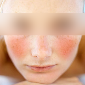 Rosacea in Newport News