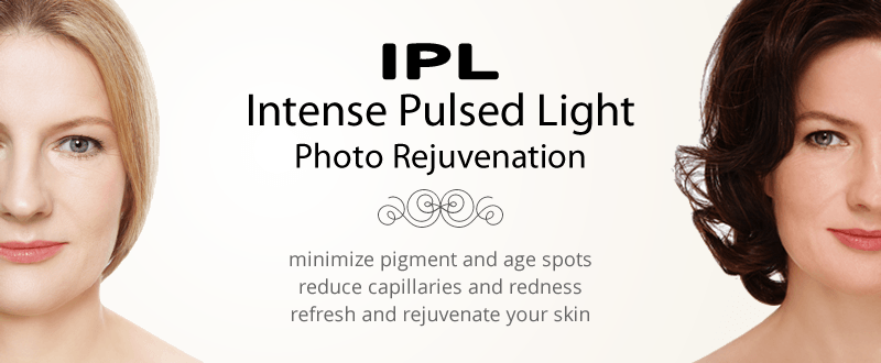 IPL Intense Pulsed Light Photofacial Treatment