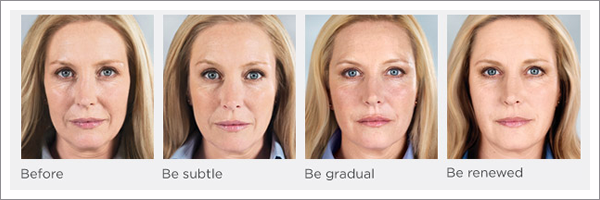 Before and After Photos for Sculptra
