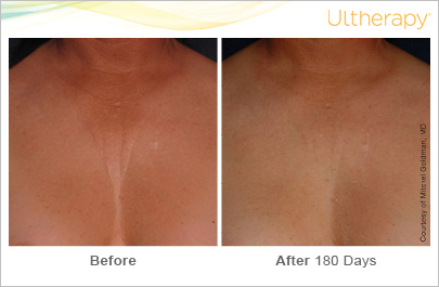 Ultherapy on the chest