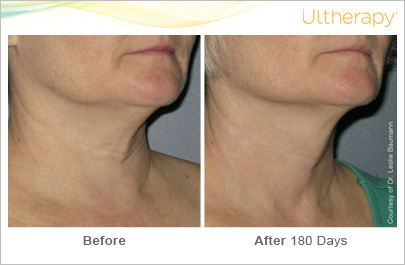 Ultherapy on the neck