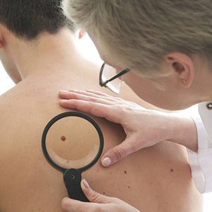 SPOTme Skin Cancer Screening Skin Check
