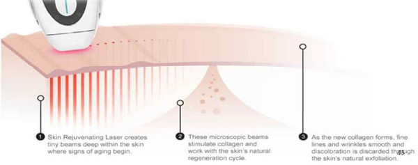 Age-defying Laser + Antioxidant System and how it works