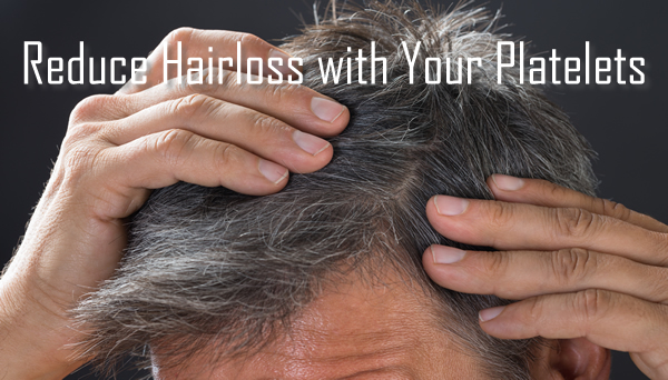 Platelet Rich Plasma Therapy for Hair Loss