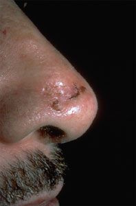 basalcellcarcinoma-shinyscar