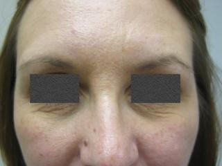botox-brow-after