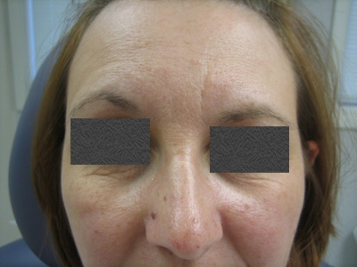 botox-brow-before