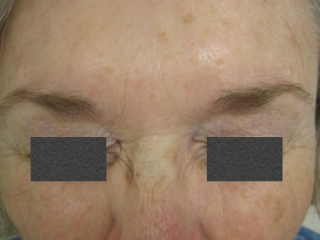 After - Treatment of Scowl Lines (Eleven Lines)