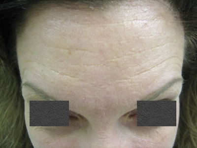 botox-forehead-after