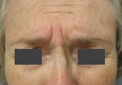 Before - Treatment of Scowl Lines (Eleven Lines)