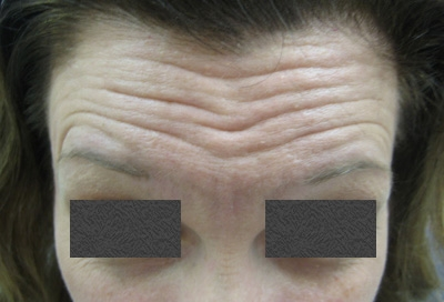 botox-forehead-before