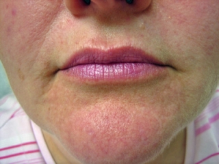 restylane-mouth-after