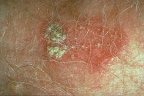 squamouscellcarcinoma-ringworm