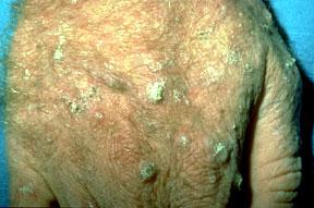 squamouscellcarcinoma-wontheal-02