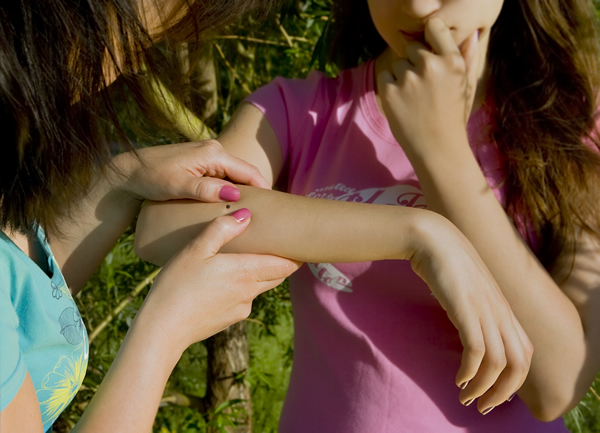 Tick Bite on Arm
