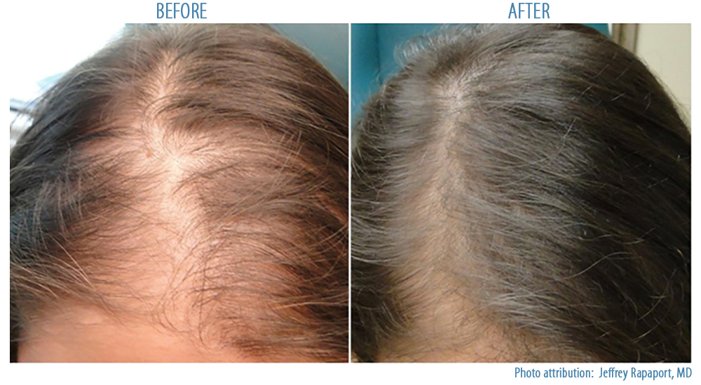 PRP Hair Loss Treatment | Before and After