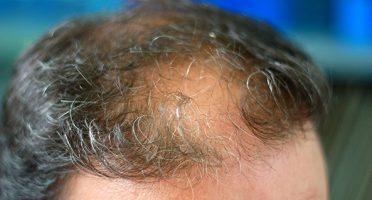 Hair Loss and PRP