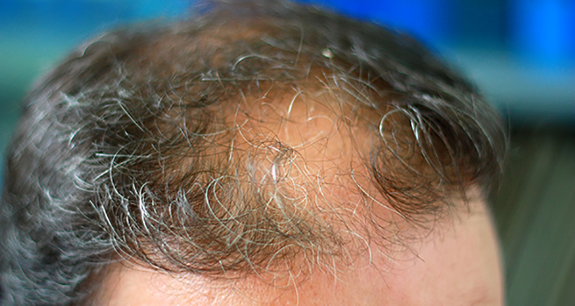 How Can PRP Help with my Hair Loss by Stimulating Hair Growth?