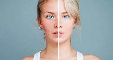 Overcoming Rosacea