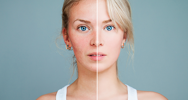 Signs of Rosacea