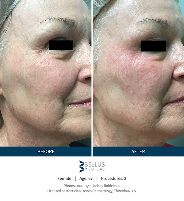 Microneedling with SkinPen | Before and After