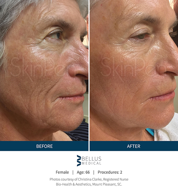 after microneedle treatment