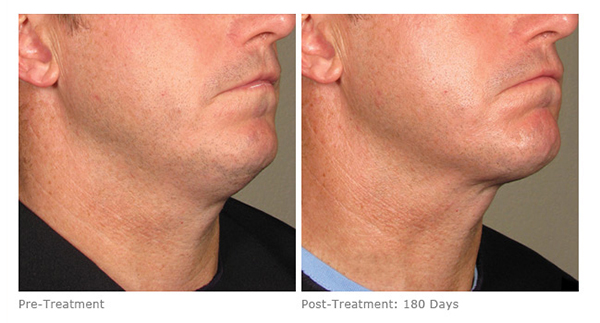 Ultherapy Lower after 180 days in Ready for Summer
