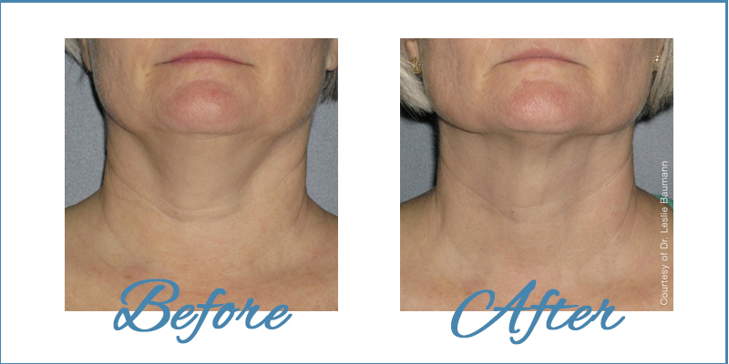 Summer Special with Ultherapy Neck before and after